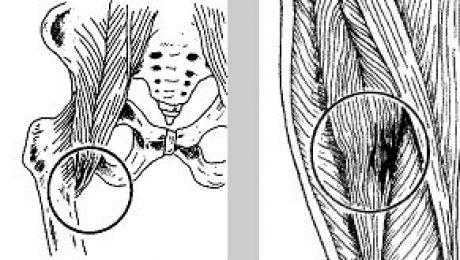 lesioni muscolari